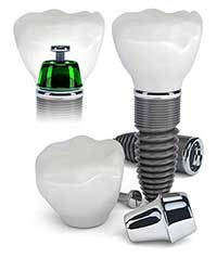 Dental Implants in Hometown